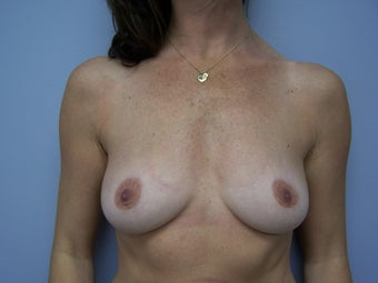 Breast Implant Removal after 589955