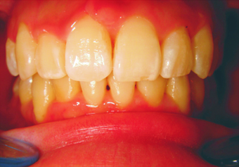 Complex orthodontics with Invisalign after 293389