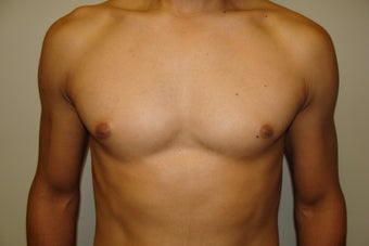 Male Nipple Reduction