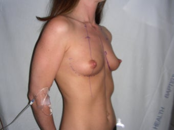 Breast Augmentation before 218307