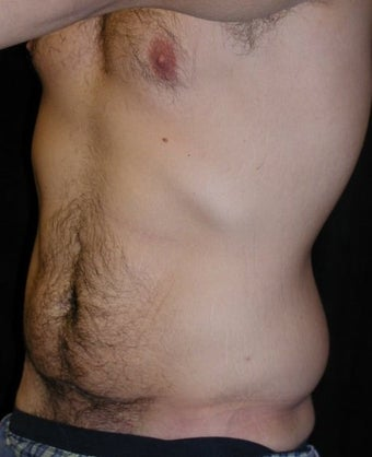 Male tummy Tuck, Flank Liposuction, Male Breast Reduction 578158