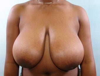 Breast Reduction before 221282