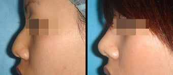 Rhinoplasty before 650742