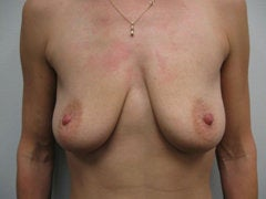 Breast Augmentation before 258597