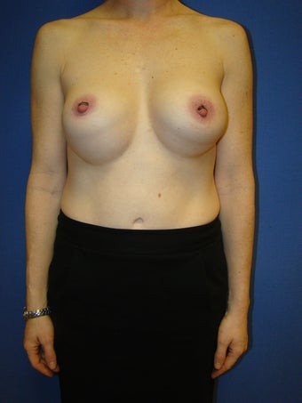 Silicone breast implant revision surgery before 79492