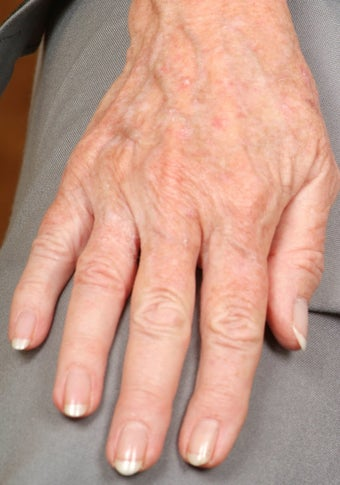 Radiesse treatment for hand rejuvenation before 124648