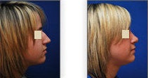 Reduction Rhinoplasty before 88849