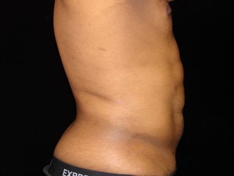 Liposuction of Abdomen, Waist, Flanks, Pecs, with 6 Pack Etching after 203532