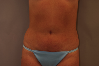 Tummy Liposuction after 229694