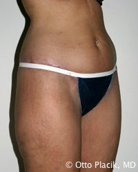 Thigh and Buttock Lift 566621