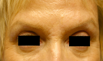 Botox & Restylane - Glabella  after 410982