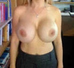 Revisonary Breast Surgery with Extra Large Implants after 130301