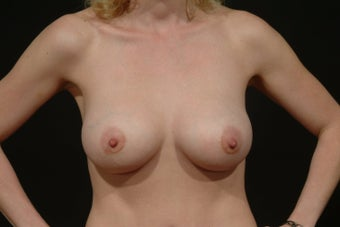Breast Augmentation after 112782
