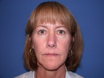 Before and After Nonsurgical Facelift before 53825