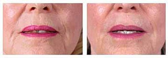 Restylane for wrinkles and marionette lines before 6266