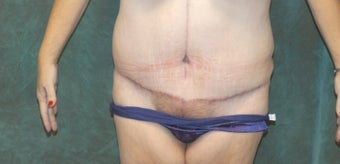 Women's Tummy Tuck Revision  after 558747