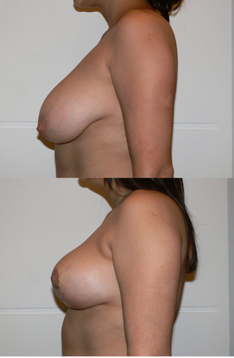 Breast Reduction 427690