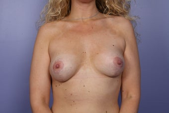 Breast Revision Surgery  after 306993