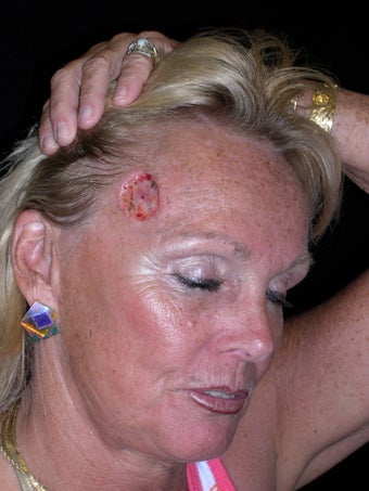 Forehead reconstruction following MOHS surgery for skin cancer before 375017