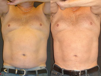 SmartLipo before 96259