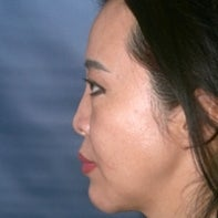 Asian Rhinoplasty before 448665