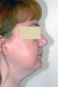 Neck Liposuction before 87336