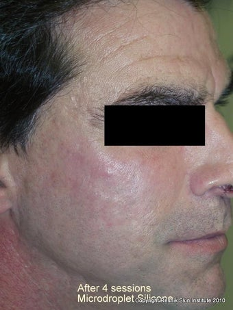 Microdroplet Silicone Acne Scar Revision after 252801