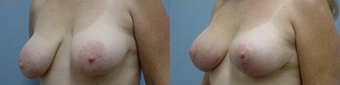 Breast Lift after 98077