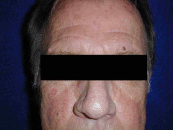 Rhinophyma after 108824