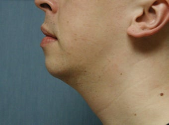 chin augmentation after 408390