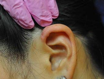 Keloid Removal after 513407