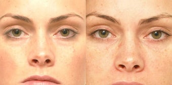 Non Surgical Liquid Eyelid Lift before 619696
