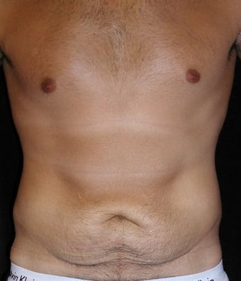 Male tummy Tuck, Flank Liposuction before 578162