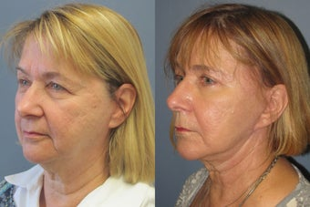 Lite Lift, upper and lower eyelid lift, liposuction of the neck, blue peel before 523514