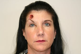 Forehead reconstruction after MOHS surgery and Left Brow Lift For Symmetry before 399860
