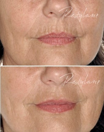 Before and after Restylane on fine lines before 6273