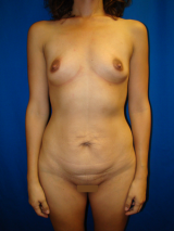 Tummy Tuck (Abdominoplasty), Breast Augmentation before 455608