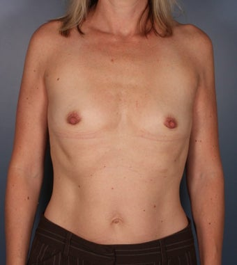 Breast augmentation - silicone submuscular