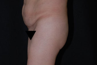 Buttock Augmentation through Fat Transfer 423709
