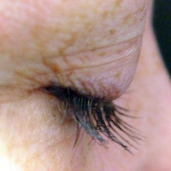Dr. Lorrie Klein's eyelashes before and after Latisse after 152210