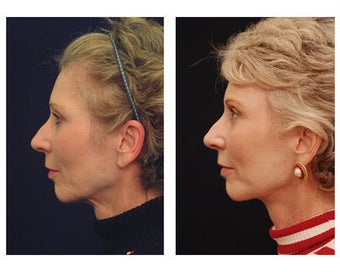 Lower Face and Neck Lift before 355123