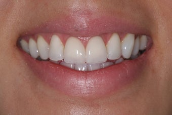 Two central incisor porcelain veneers