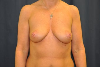 Breast Augmentation before 515234