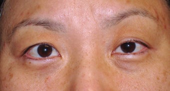 Upper Blepharoplasty before 365448