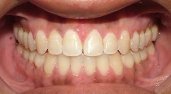 Adult Orthodontic Treatment (case #3KE) after 224691