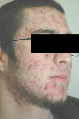 Laser Acne Treatment before 82963