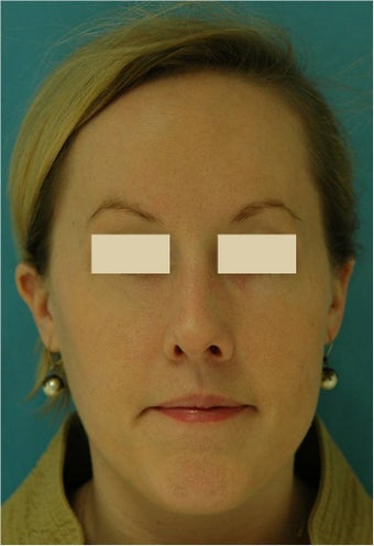 Rhinoplasty, Septoplasty after 124594