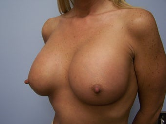 Very large breast implants 591053