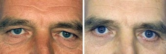 Blepharoplasty before 643229