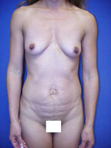 Tummy Tuck Surgery (Abdominoplasty) with Breast Augmentation before 121180